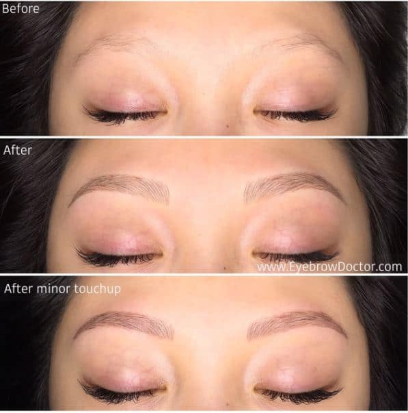 Before And After Cosmetic Eyebrow Tattoo Melbourne Cosmetic