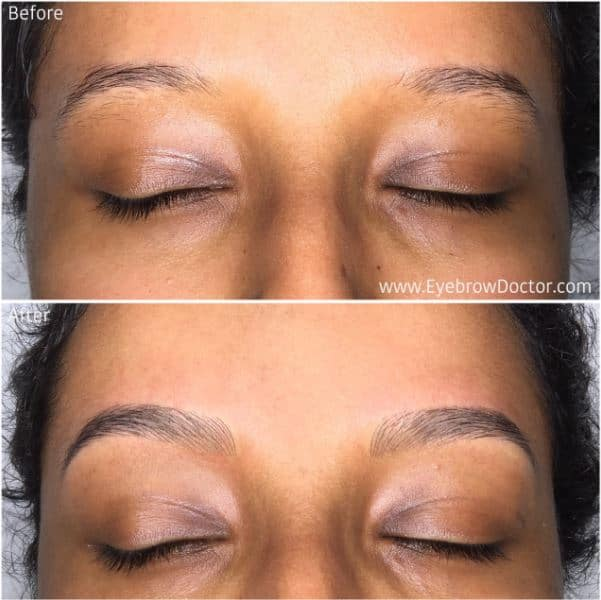 cosmetic eyebrow tattoo melbourne photo