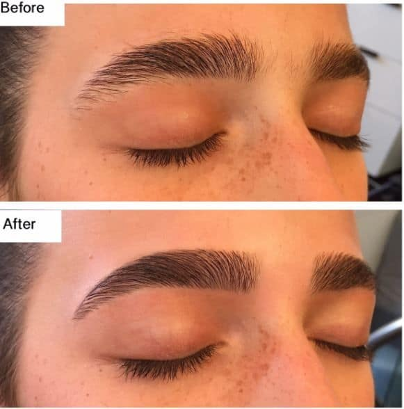 cosmetic eyebrow tattoo South Yarra