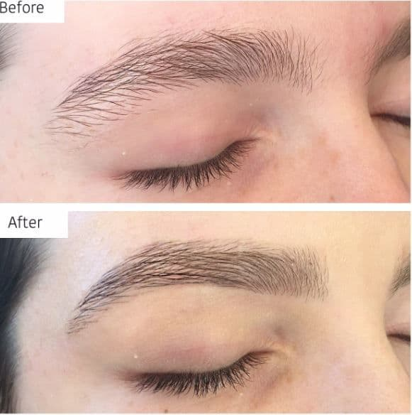 Cosmetic Eyebrow Tattoo Service In Brighton Melbourne Vic